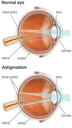 Astigmatism Treatment NYC Eye Doctors
