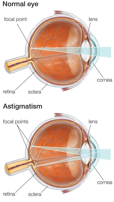 Astigmatism NYC Eye Doctors
