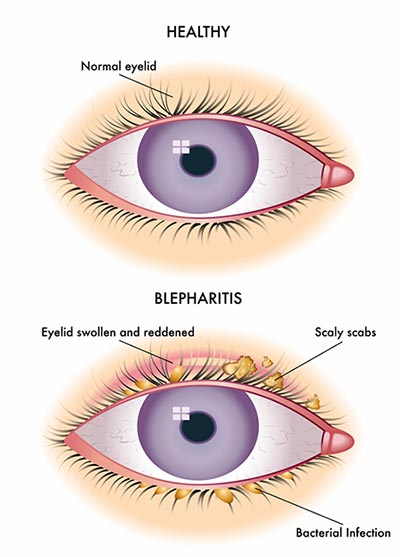 Blepharitis (itchy, dry eyelids) Treatment | NYC Eye Doctors