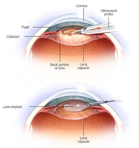 Cataract Removal Surgery · NYC Eye Doctor