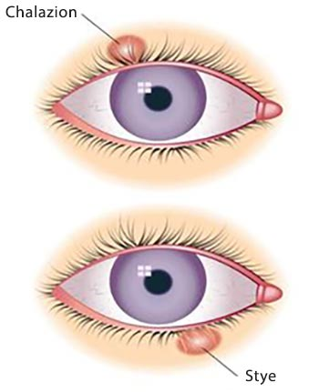 how to make a chalazion pop