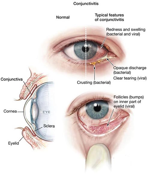 pink eye, conjunctivitis treatment NYC