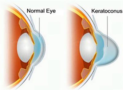 Corneal Cross Linking (CXL) Procedure · NYC Eye Doctor