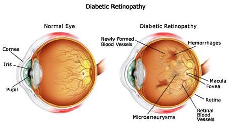 diabetic retinopathy eye disease specialist nyc
