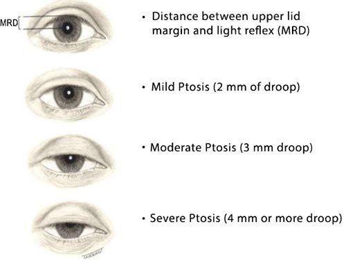 congenital ptosis exercises to lose weight