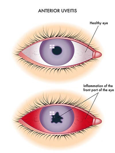 Eye Inflammation (Uveitis) Treatment · NYC