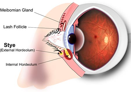 Communication on this topic: How to get rid of a stye , how-to-get-rid-of-a-stye/