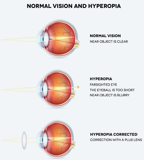farsightedness, hyperopia