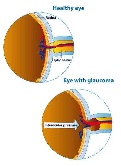 Glaucoma Test NYC