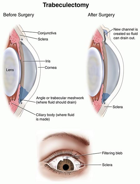 Glaucoma Treatment, Trabeculectomy Surgery NYC