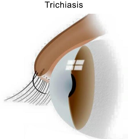 Ingrown Eyelash, Trichiasis Treatment NYC