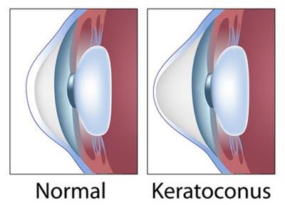 Keratoconus Treatment NYC