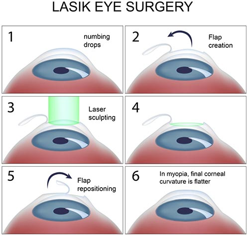 LASIK Eye Surgery procedure NYC