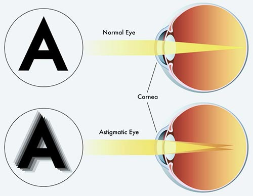 Consider, that amblyopia symptoms in adults understand