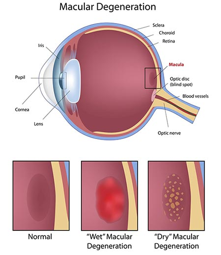 Age Related Macular Degeneration (amd) | NYC Eye Doctors