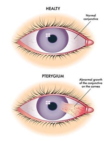 Pterygium Surgery NYC