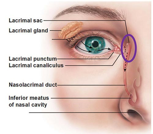 Punctal Occlusion (Punctal Cautery)