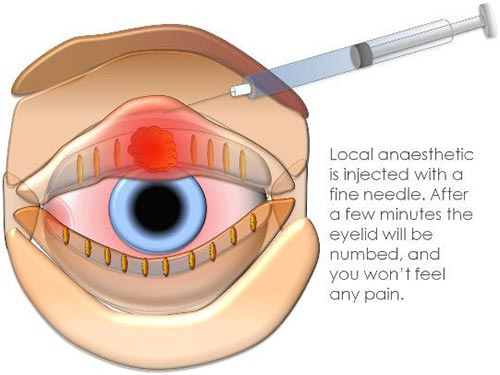 Stye Treatment, Surgery NYC