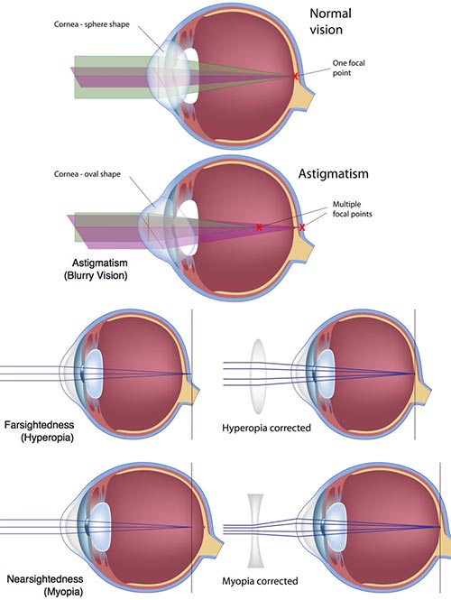 Types of LASIK Eye Surgery