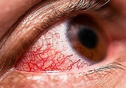 Uveitis (eye inflammation)